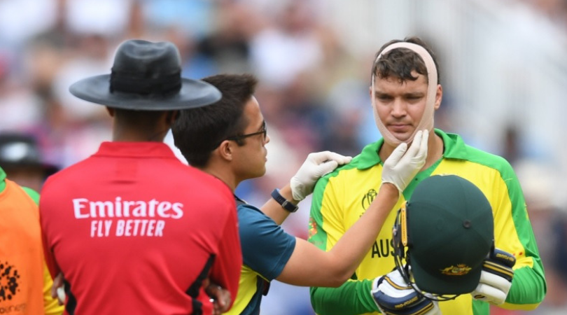 Alex Carey Injury Update: Will Australian wicket-keeper keep wickets in 2019 World Cup semi-final vs England?